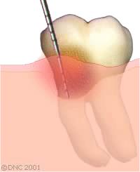 dent paro