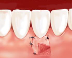 greffe gingivale dentiste marseille parodontologie 2