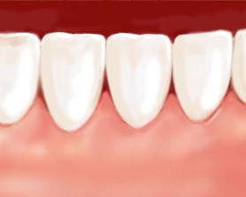 greffe gingivale dentiste marseille parodontologie 3