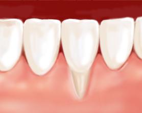 greffe gingivale dentiste marseille parodontologie