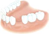 implant dentaire dentiste marseille implantologie 1