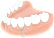 implant dentaire dentiste marseille implantologie 2