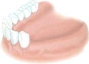 implant dentaire dentiste marseille implantologie 3