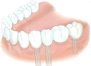implant dentaire dentiste marseille implantologie 4