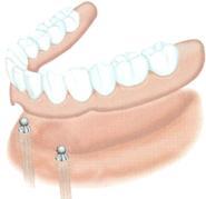 implant dentaire dentiste marseille implantologie 7