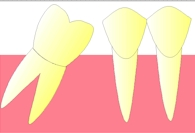 perte dent  dentiste marseille CARIE 3