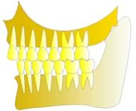 perte dent  dentiste marseille protheses dentaires 1
