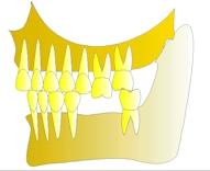perte dent  dentiste marseille protheses dentaires 2