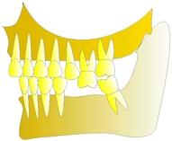 perte dent  dentiste marseille protheses dentaires 3