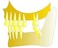 perte dent  dentiste marseille protheses dentaires 4
