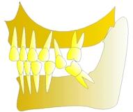 perte dent  dentiste marseille protheses dentaires 5