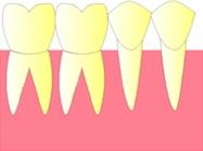perte dent  dentiste marseille protheses dentaires  CARIES 1