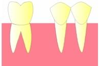 perte dent  dentiste marseille protheses dentaires  CARIES 2