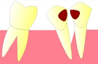 perte dent  dentiste marseille protheses dentaires  CARIES 4