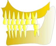 perte dent  dentiste marseille protheses dentaires