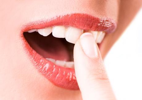 perte dents chirurgien dentiste marseille prothese implant dentaire  parodontologie