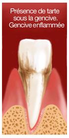 surfaçage radiculaire 1 dentiste marseille