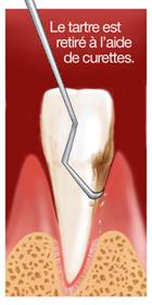surfaçage radiculaire 2 dentiste marseille