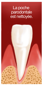 surfaçage radiculaire 3 dentiste marseille