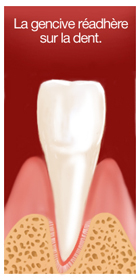 surfaçage radiculaire 4 dentiste marseille